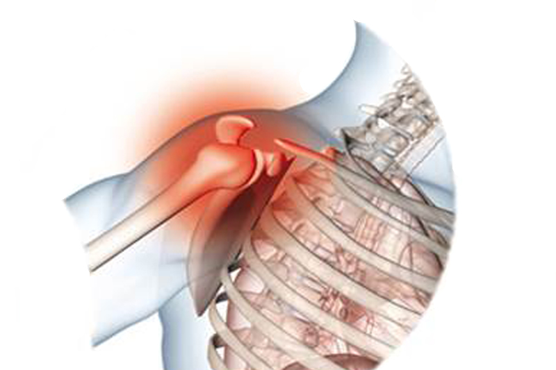 pilates y artrosis 2
