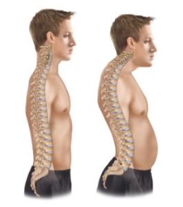 Como Pilates puede tratar la hipercifosis (espalda encorvada)
