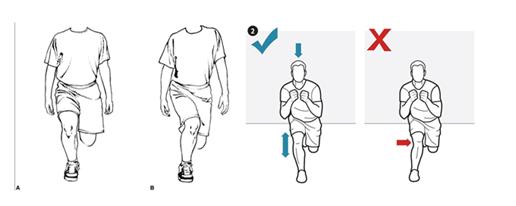 La importancia de la cadera (II) glúteo medio y dolor de rodilla-02