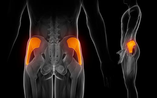 La importancia de la cadera amnesia de glúteo y dolor de espalda-02