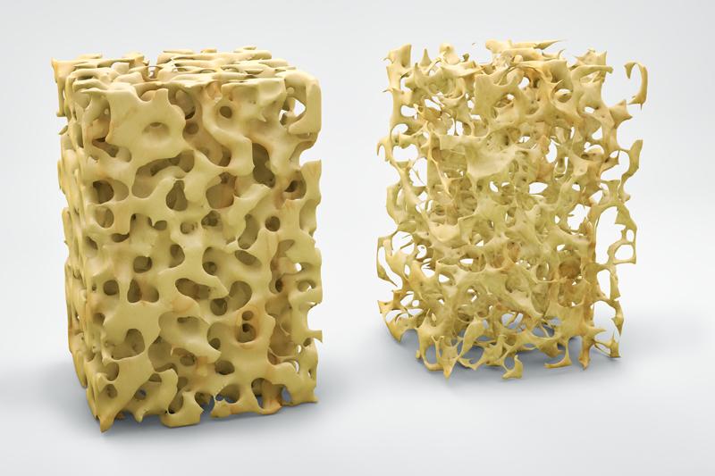patologias-osteoporosis-01